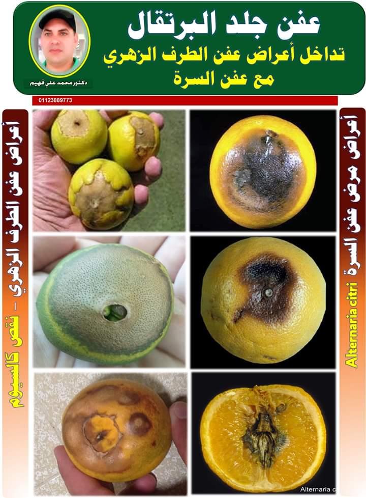صورة رسائل الدكتور محمد فهيم:  الموالح .. أمراض وأعراض تبدأ الوقاية منها الآن